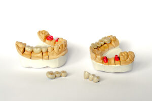 concept of orthopedic dentistry. dental prosthetics with ceramic crowns and bridges. dental bridges on the posterior teeth. aesthetic prosthetics. gypsum models of the lower and upper jaw. White background