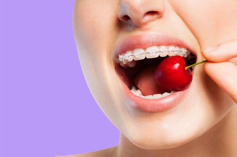aparat na zęby wiśnia